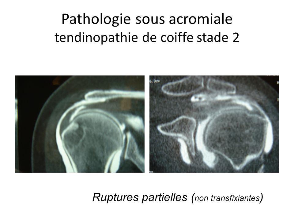 Pathologie sous acromiale tendinopathie de coiffe stade 2