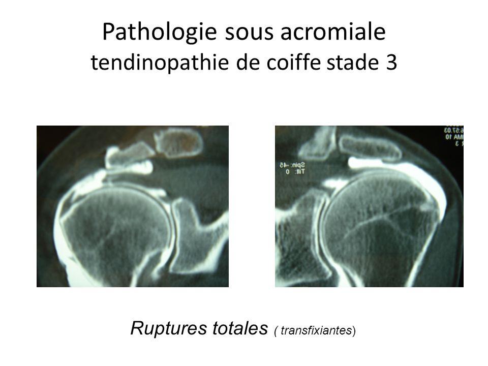 Pathologie sous acromiale tendinopathie de coiffe stade 3