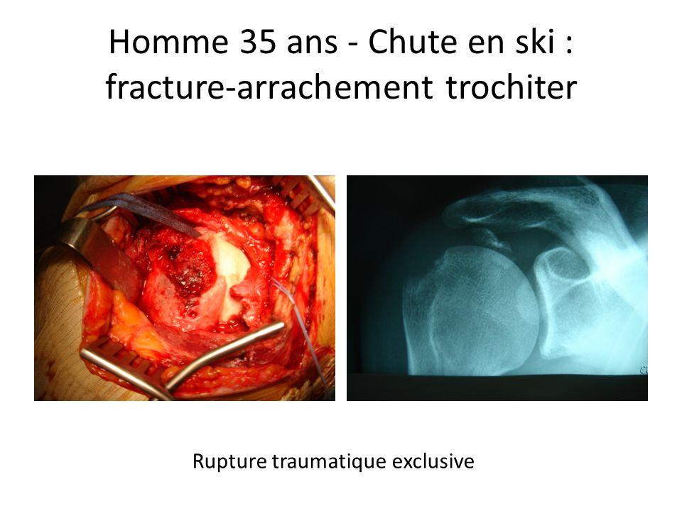 Homme 35 ans - Chute en ski : fracture-arrachement trochiter