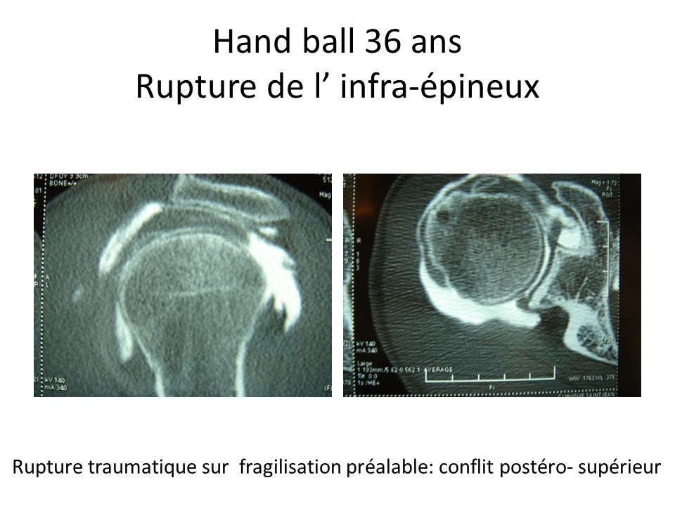 Hand ball 36 ans Rupture de l' infra-épineux