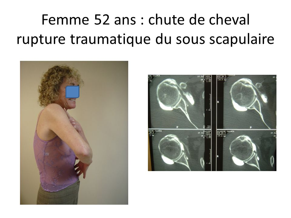 Femme 52 ans : chute de cheval rupture traumatique du sous scapulaire