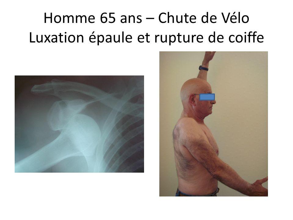 Homme 65 ans – Chute de Vélo Luxation épaule et rupture de coiffe