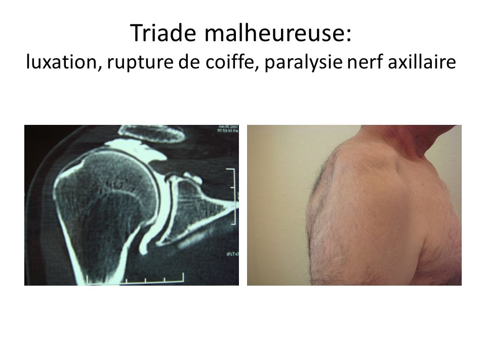Triade malheureuse: luxation, rupture de coiffe, paralysie nerf axillaire