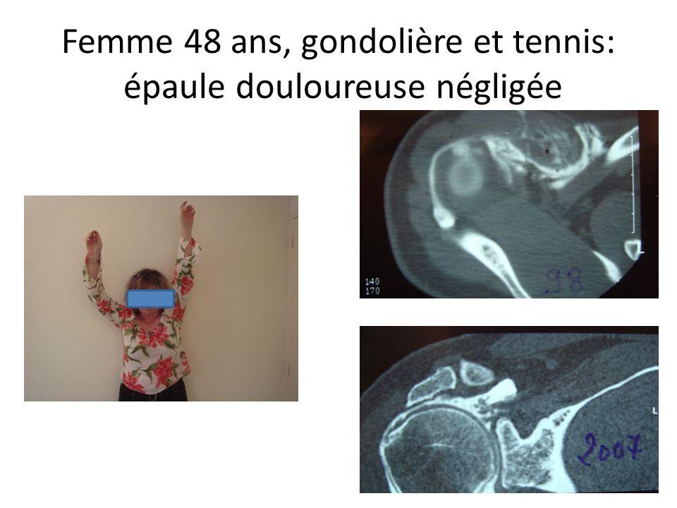 Femme 48 ans, gondolière et tennis: épaule douloureuse négligée