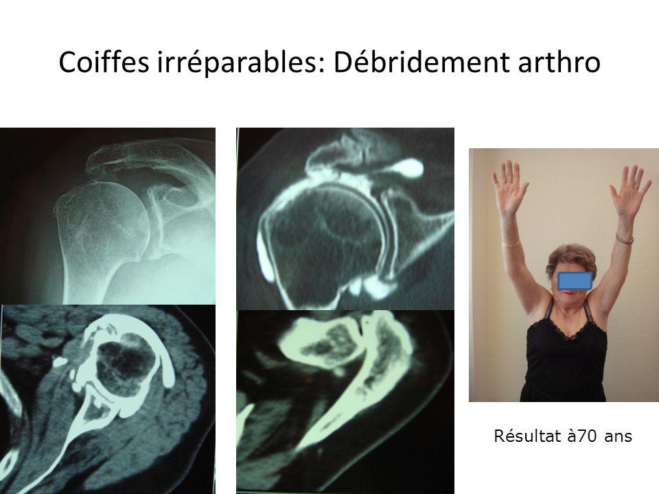 Coiffes irréparables: Débridement arthro