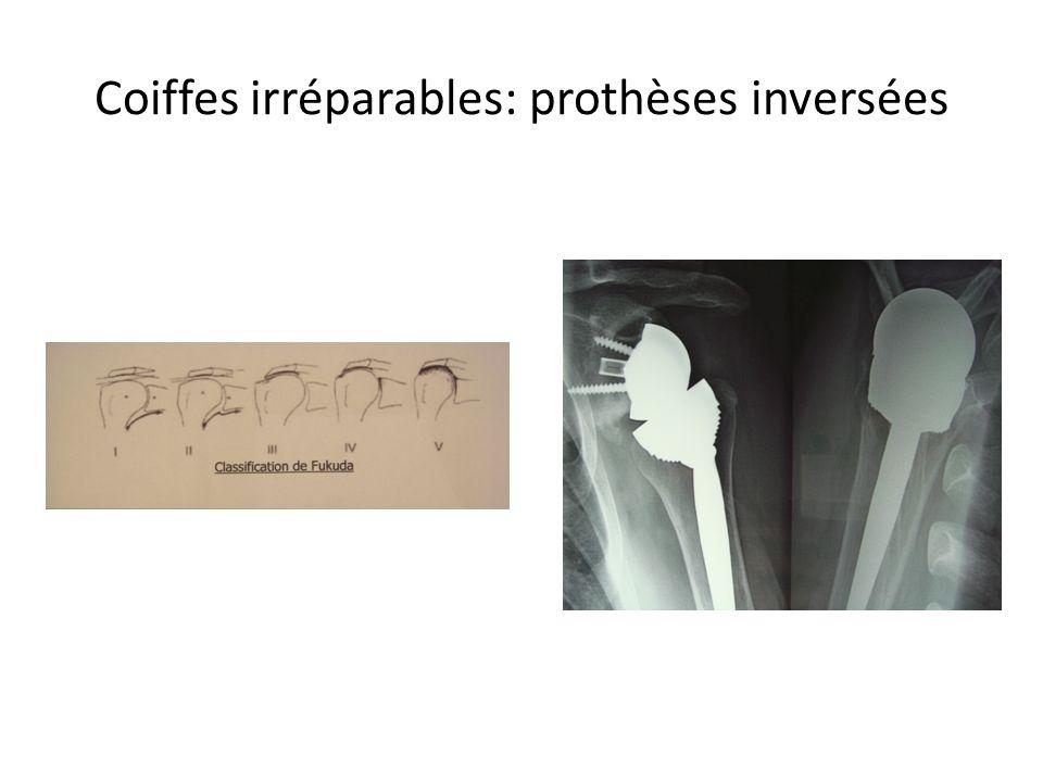 Coiffes irréparables: prothèses inversées