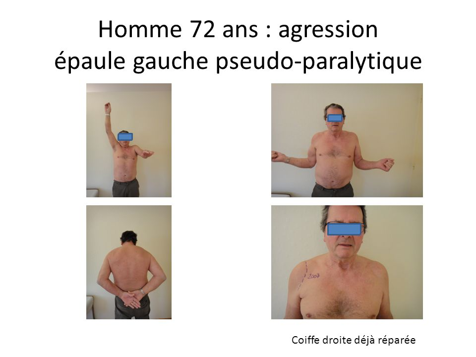 Homme 72 ans : agression épaule gauche pseudo-paralytique