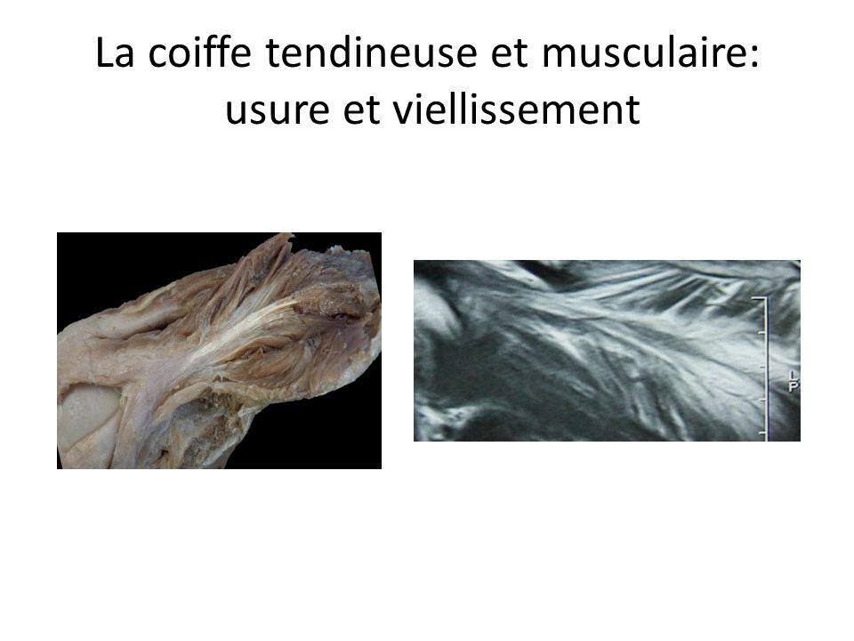 La coiffe tendineuse et musculaire: usure et viellissement