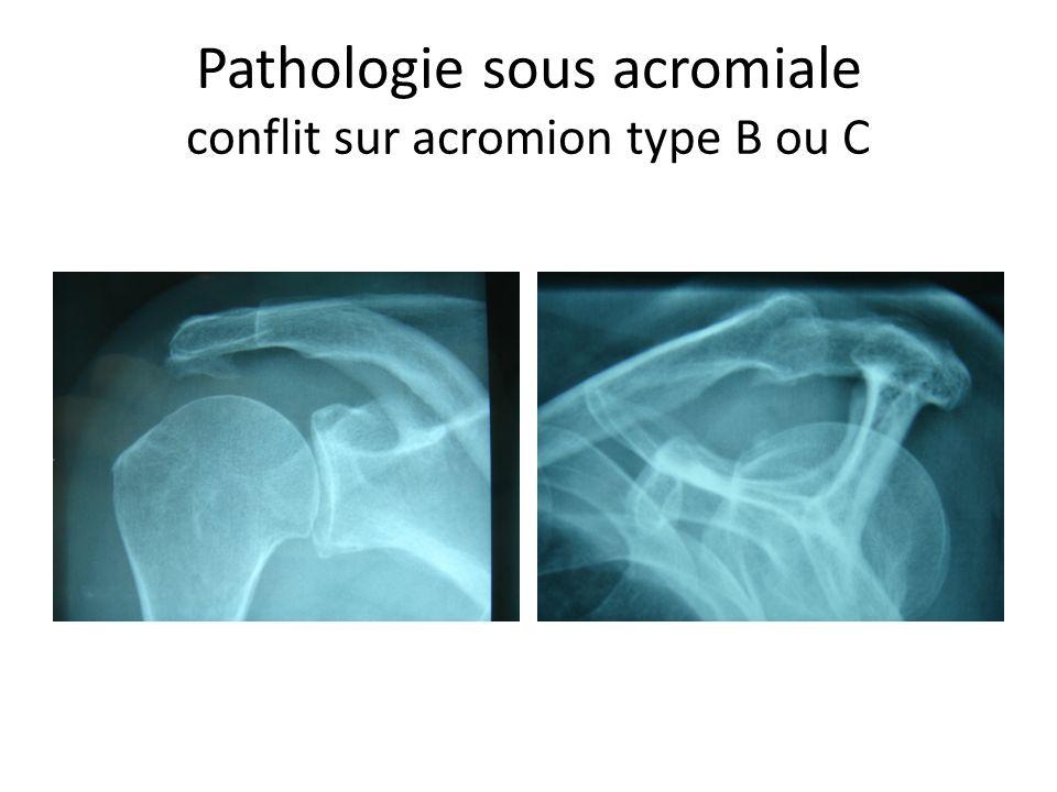 Pathologie sous acromiale conflit sur acromion type B ou C