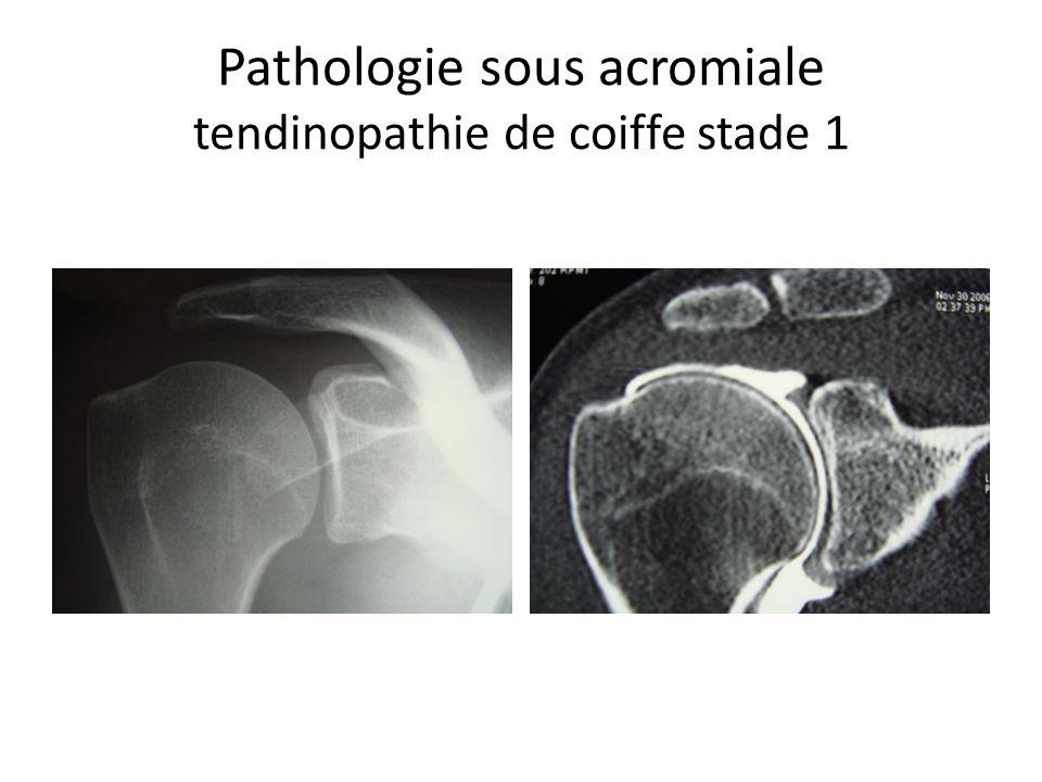 Pathologie sous acromiale tendinopathie de coiffe stade 1