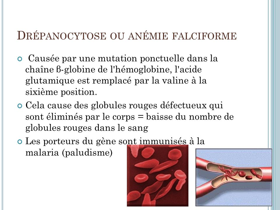 Drépanocytose ou anémie falciforme