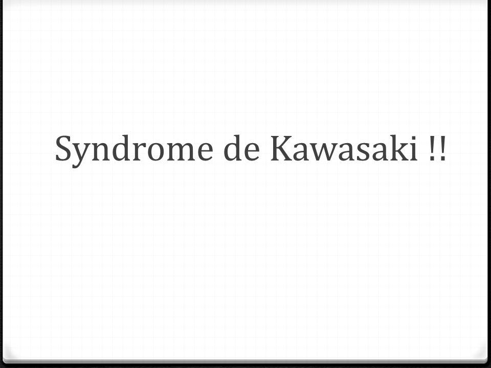 Syndrome de Kawasaki !!