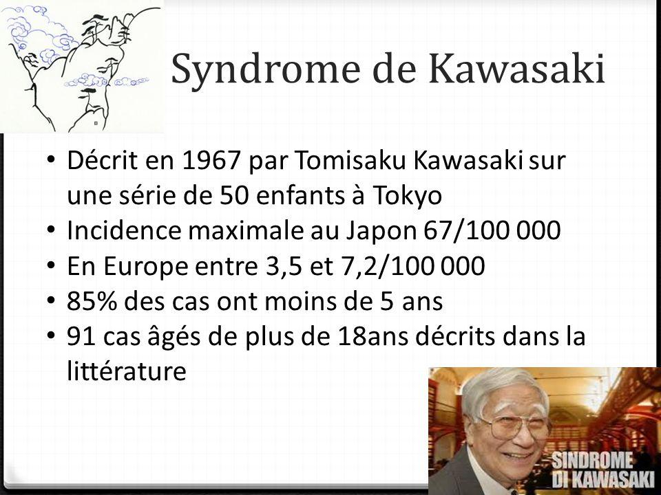 Syndrome de Kawasaki Décrit en 1967 par Tomisaku Kawasaki sur une série de 50 enfants à Tokyo. Incidence maximale au Japon 67/100 000.