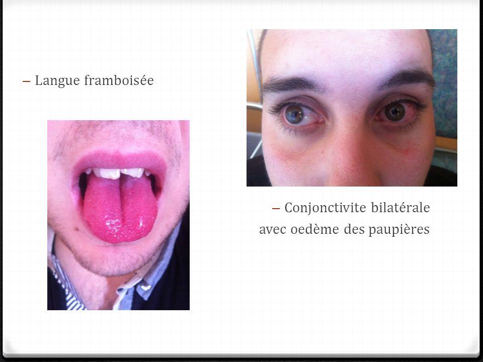Langue framboisée Conjonctivite bilatérale avec oedème des paupières