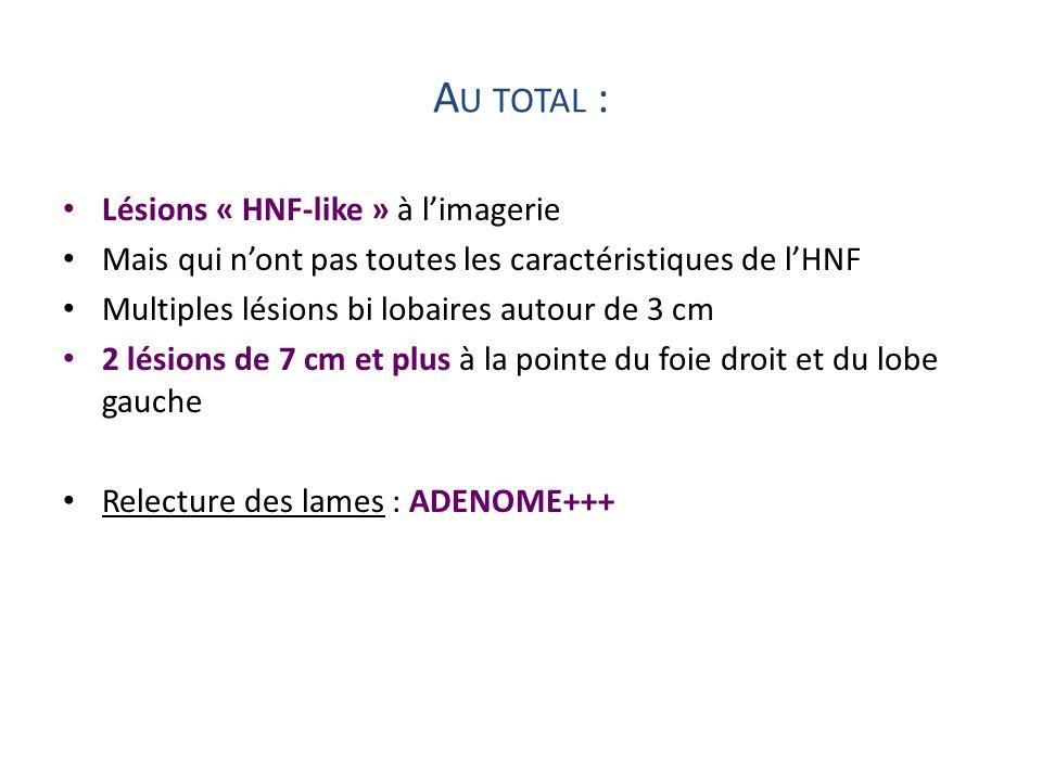 Au total : Lésions « HNF-like » à l'imagerie