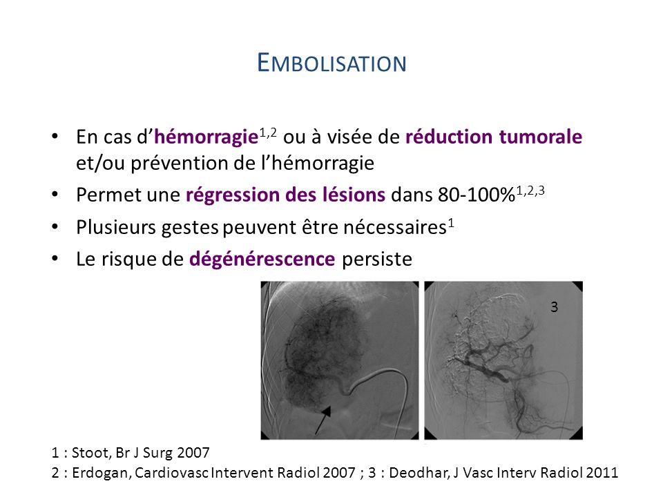 Embolisation En cas d'hémorragie1,2 ou à visée de réduction tumorale et/ou prévention de l'hémorragie.