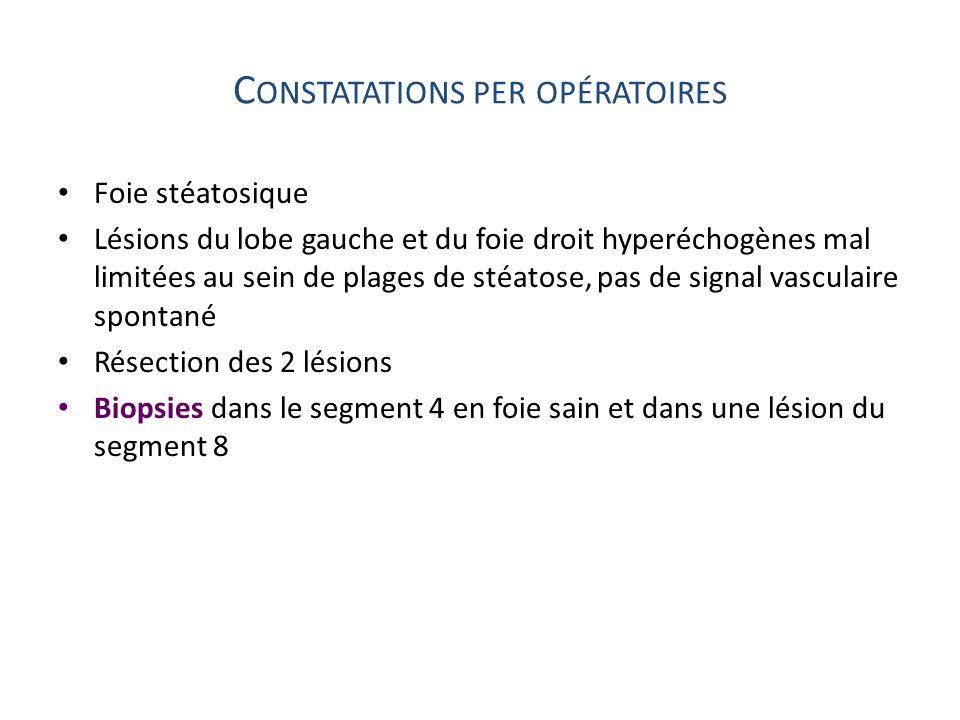 Constatations per opératoires