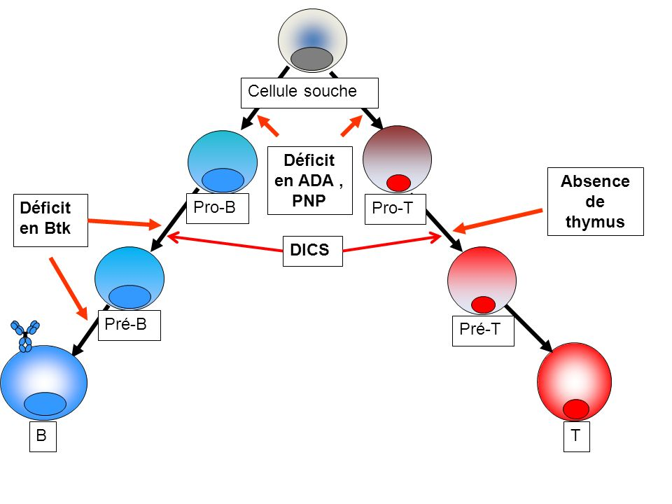 Déficit en ADA , PNP Absence de thymus