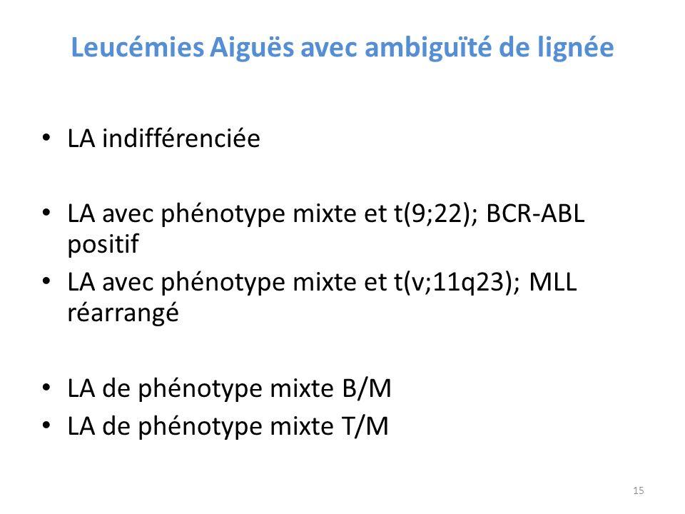 Leucémies Aiguës avec ambiguïté de lignée