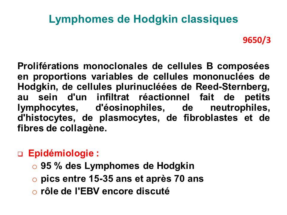 Lymphomes de Hodgkin classiques