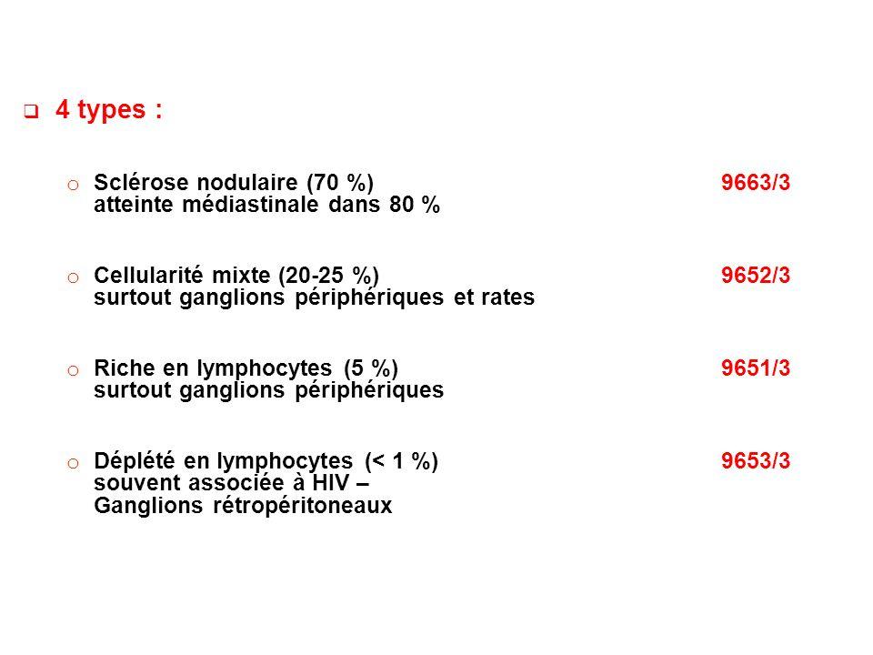 4 types : Sclérose nodulaire (70 %) 9663/3 atteinte médiastinale dans 80 %