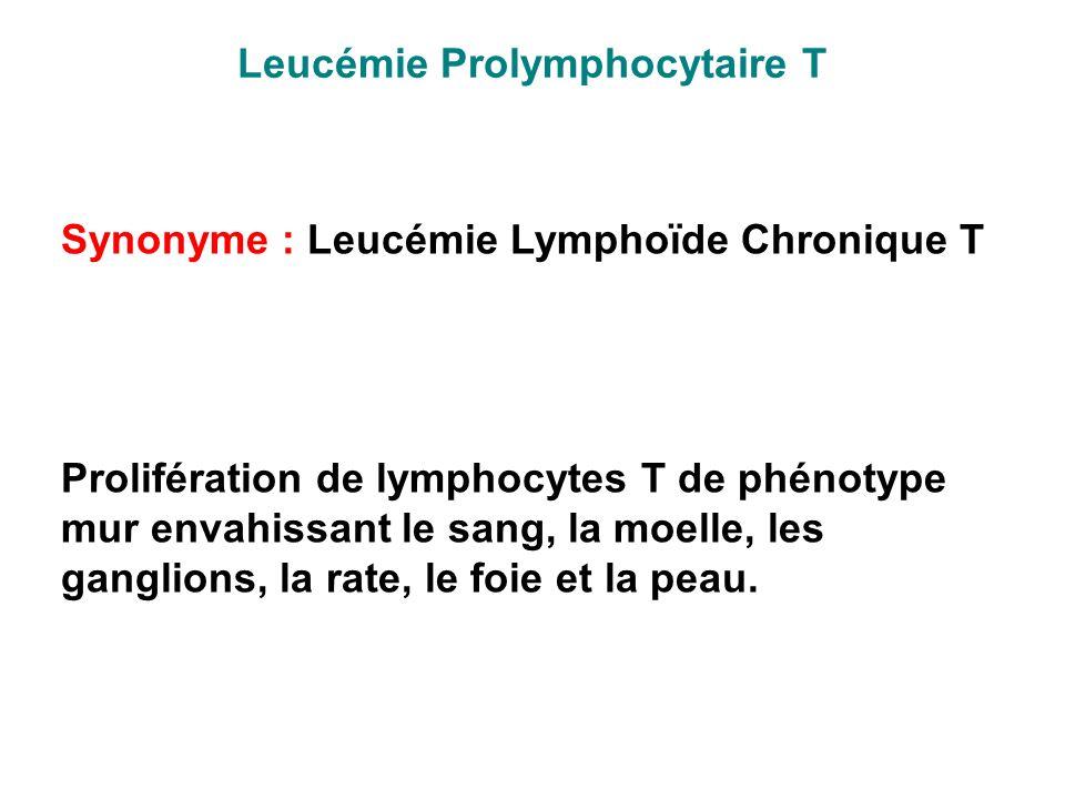 Leucémie Prolymphocytaire T