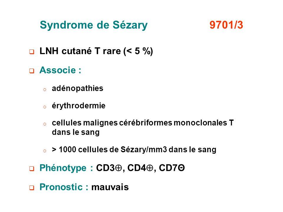 Syndrome de Sézary 9701/3 LNH cutané T rare (< 5 %) Associe :