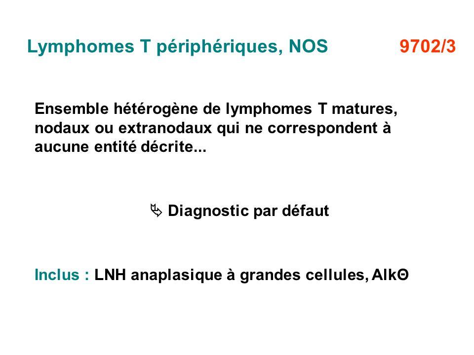 Lymphomes T périphériques, NOS 9702/3
