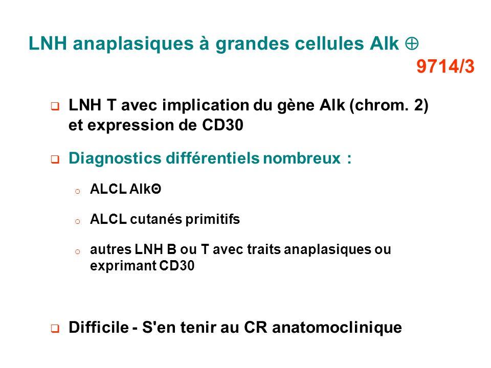 LNH anaplasiques à grandes cellules Alk  9714/3