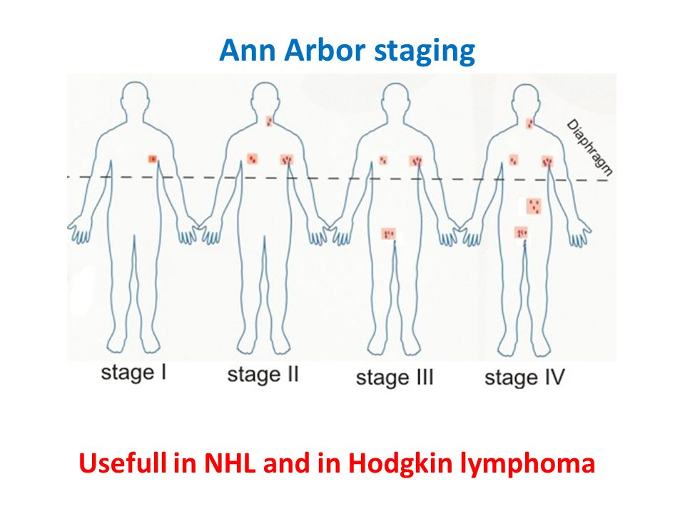 Ann Arbor staging Usefull in NHL and in Hodgkin lymphoma
