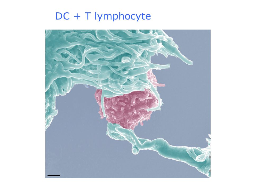 DC + T lymphocyte