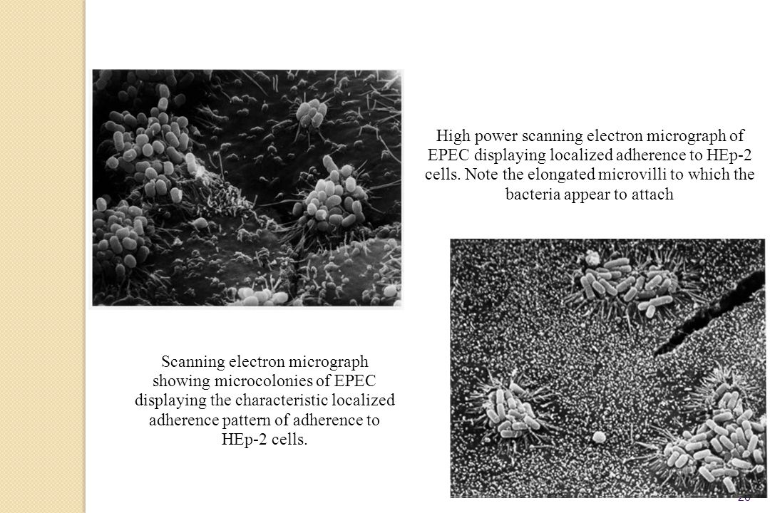 High power scanning electron micrograph of EPEC displaying localized adherence to HEp-2 cells. Note the elongated microvilli to which the bacteria appear to attach