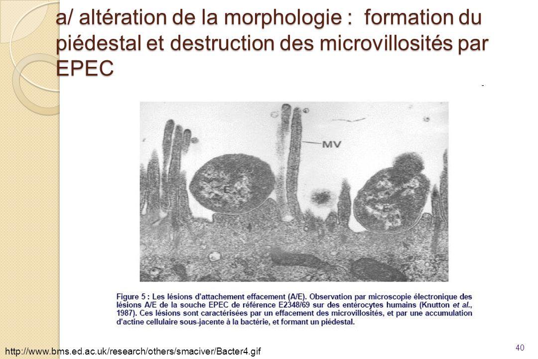 a/ altération de la morphologie : formation du piédestal et destruction des microvillosités par EPEC