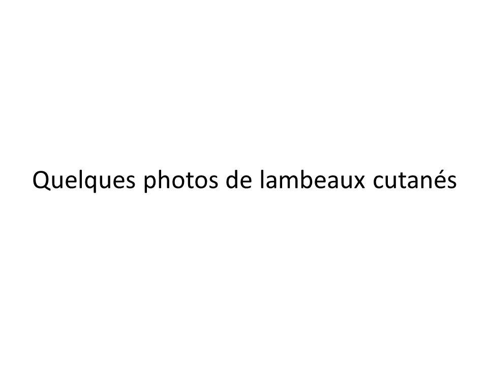 Quelques photos de lambeaux cutanés