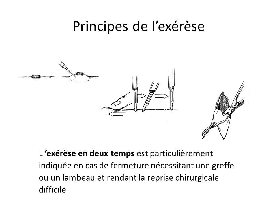 Principes de l'exérèse