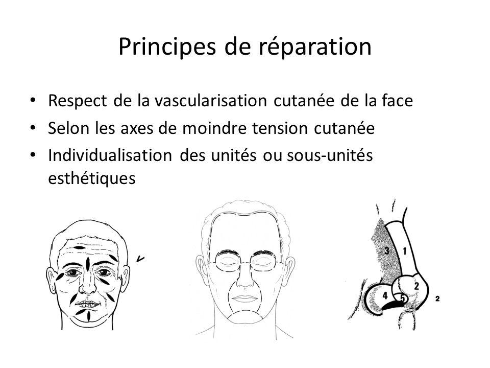 Principes de réparation