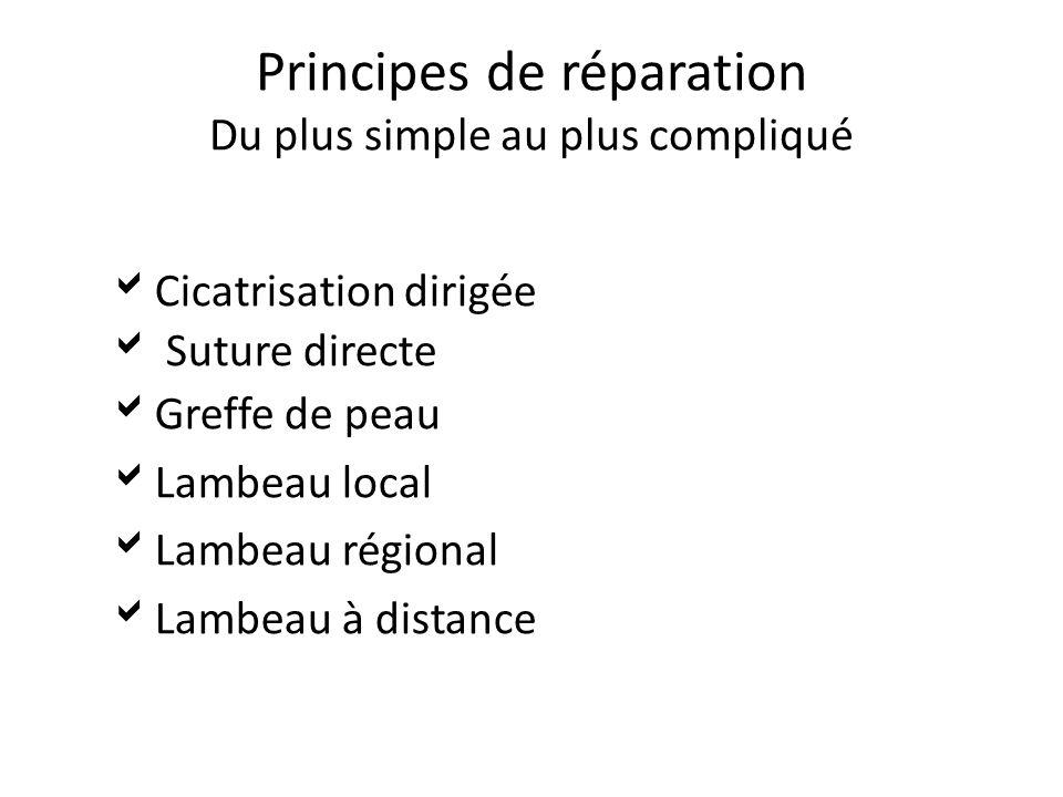 Principes de réparation Du plus simple au plus compliqué