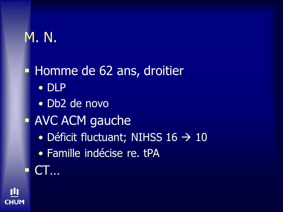 M. N. Homme de 62 ans, droitier AVC ACM gauche CT… DLP Db2 de novo