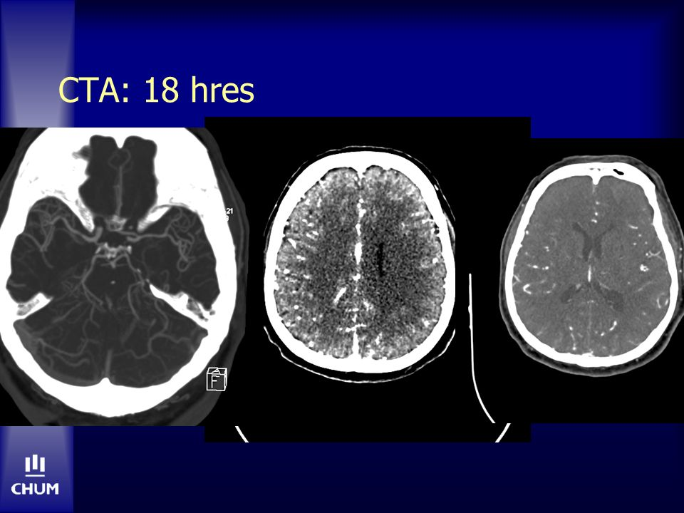CTA: 18 hres Internal cerebral vein sign Bilat ACA via RICA