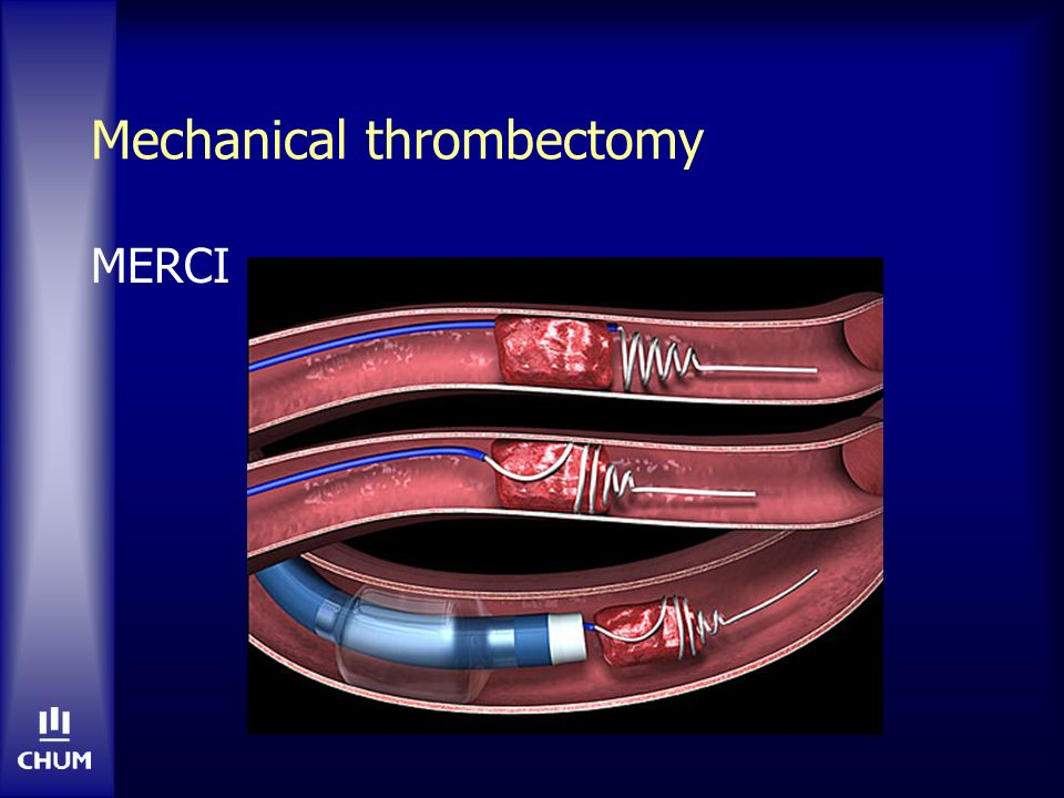 Mechanical thrombectomy