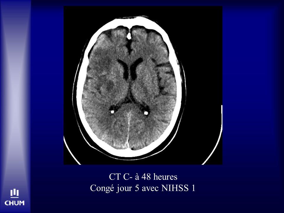 CT C- à 48 heures Congé jour 5 avec NIHSS 1