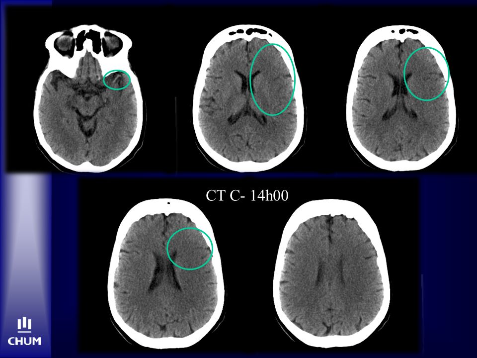 CT C- 14h00 ASPECTS 4 (insula, lentiform, M1, M2, M4,M5)