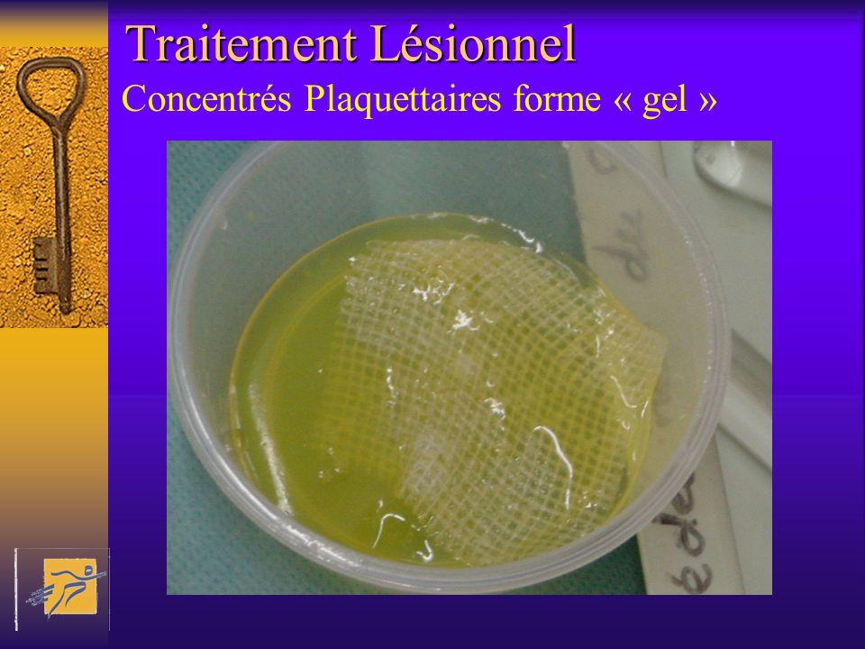 Traitement Lésionnel Concentrés Plaquettaires forme « gel »