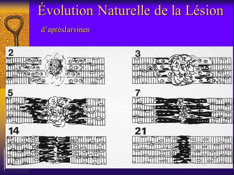 Évolution Naturelle de la Lésion d'aprèsJarvinen