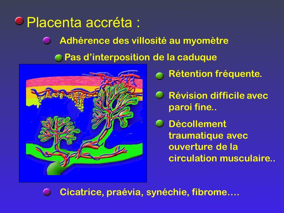 Placenta accréta : Adhérence des villosité au myomètre