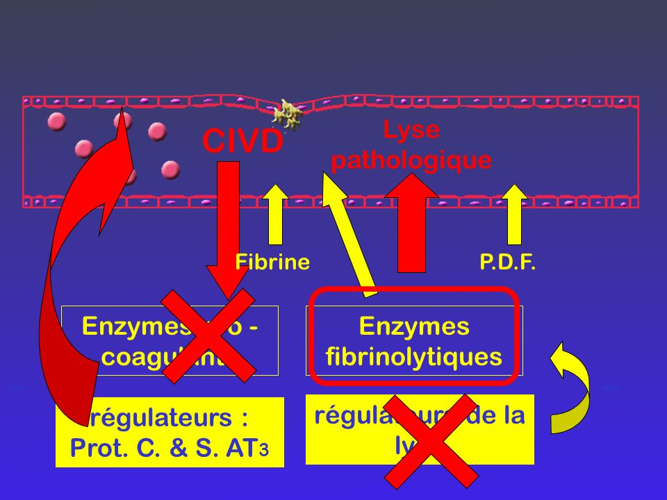 - - CIVD Lyse pathologique Enzymes pro -coagulants