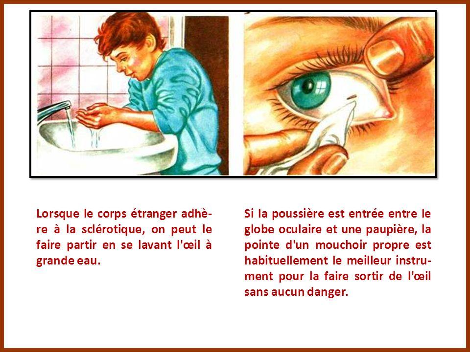 Lorsque le corps étranger adhè-re à la sclérotique, on peut le faire partir en se lavant l œil à grande eau.