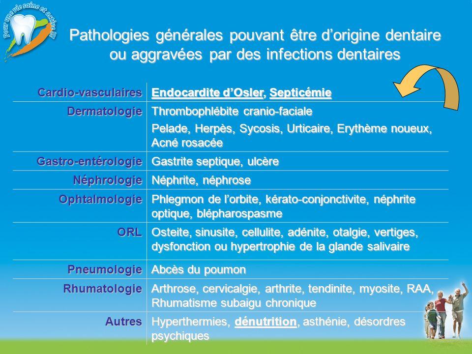 Pathologies générales pouvant être d'origine dentaire ou aggravées par des infections dentaires