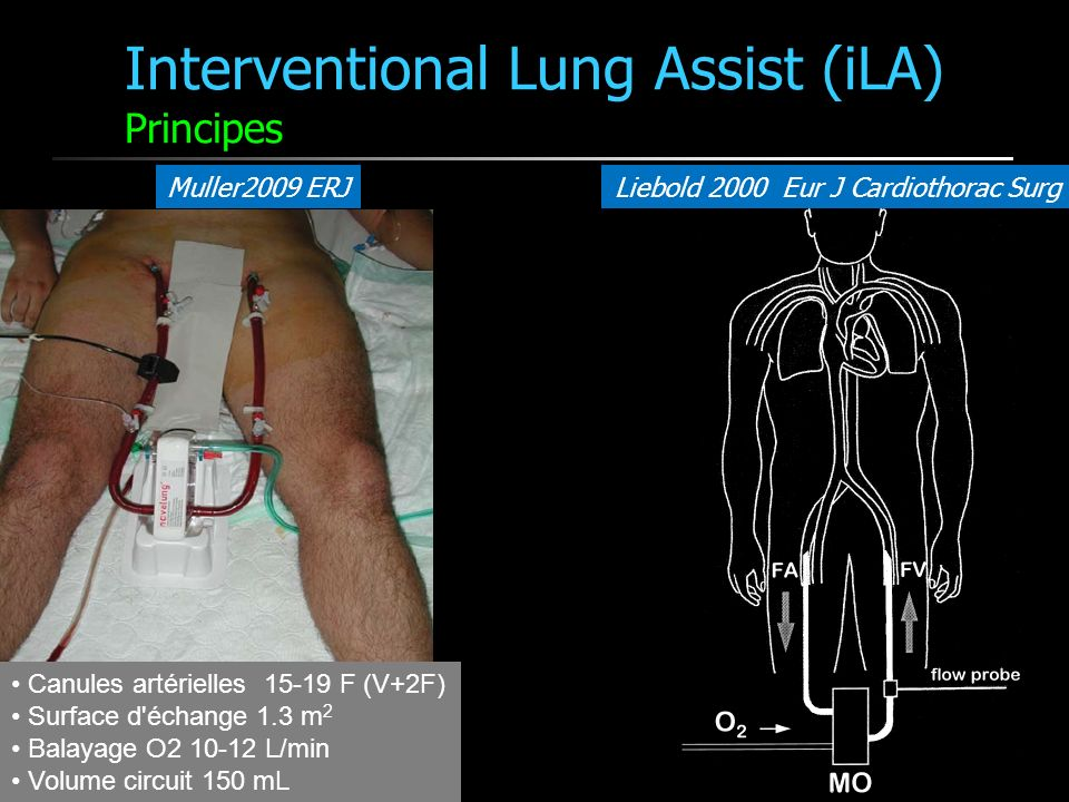 Interventional Lung Assist (iLA) Principes