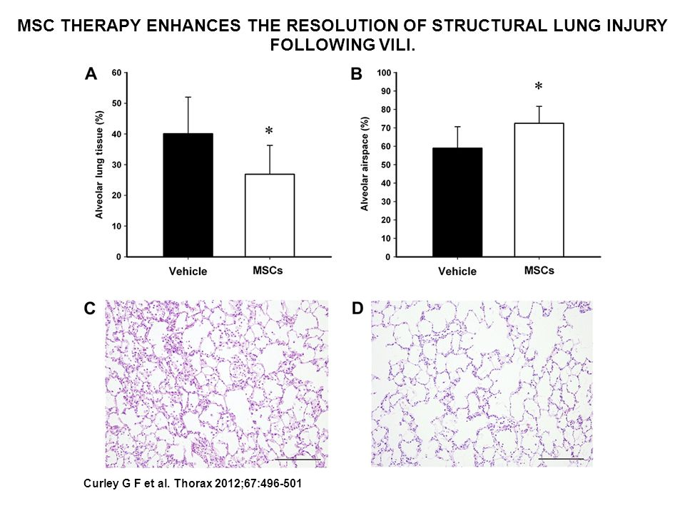 MSC THERAPY ENHANCES THE RESOLUTION OF STRUCTURAL LUNG INJURY FOLLOWING VILI.